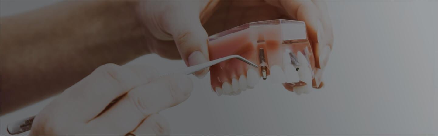 Pròtesi Dental